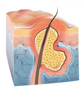 Acne-Tratamento-Acne-Cravo-Espinha-Dermatologista-BH
