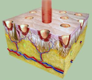 Laser-Fracionado-CO2-Laser-CO2-Fracionado-bh