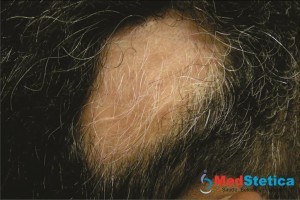alopecia-areata-cabelos-brancos-queda-de-cabelo
