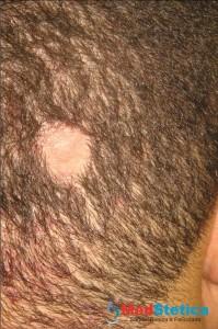 alopecia-areata-queda-de-cabelo