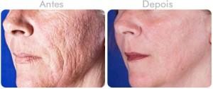 antes-depois-laser-fracionado-co2-laser-co2-fracionado-cicatrizes-acne-bh