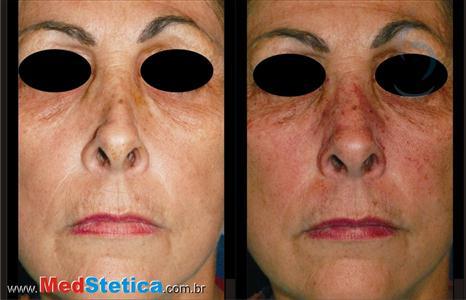 preenchimento bioplastia nariz
