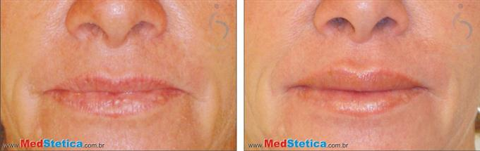 preenchimento bioplastia aumento-volume-labios