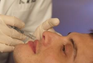 preenchimento bioplastia bh teixeira-de-freitas acido-hialuronico