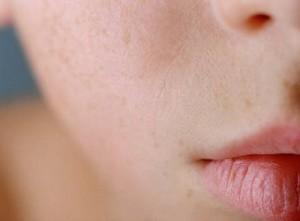pele-sem-manchas-sem-cicatrizes-acne-laser-fracionado-co2